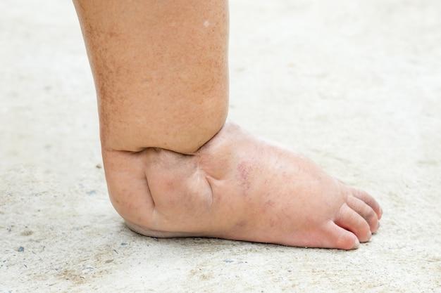 Füße von menschen mit diabetes, dumpf und geschwollen. aufgrund der toxizität von diabetes platziert