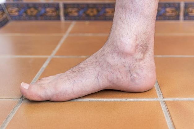 Fuß des erwachsenen mannes mit krampfadern