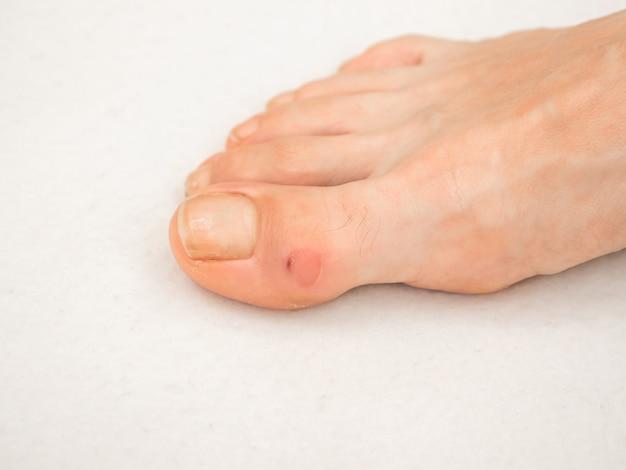 Fuß mit schwiele am finger. nahaufnahme von schwielen. schmerzhafter mais zu fuß.