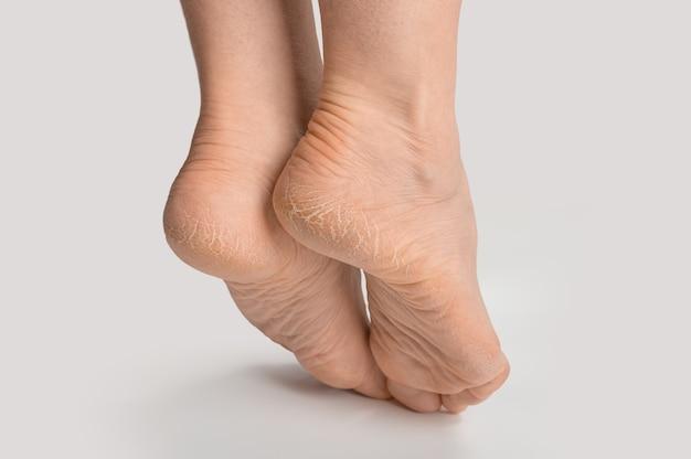 Fuß mit trockener haut an ferse und sohle. weibliche frauenfüße mit rauer rissiger haut. gebrochene ferse am fuß der frau.