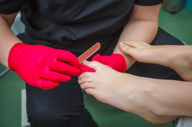 Fußarzt, der zehennagelpilz behandelt. podologische behandlung.