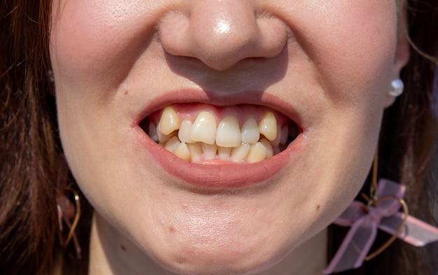 Gebogene weibliche zähne, bevor zahnspangen installiert werden. nahaufnahme der zähne vor der behandlung durch einen kieferorthopäden.