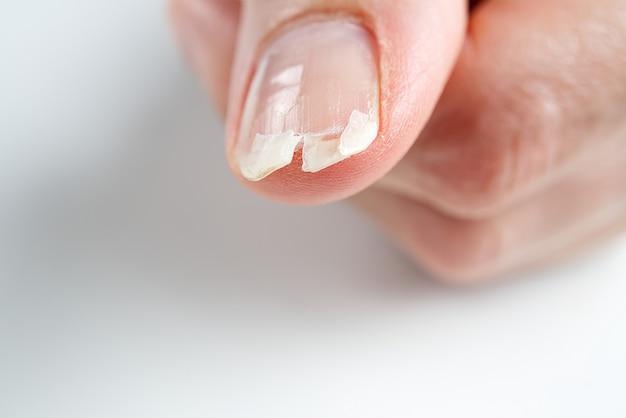Gebrochener nagel an einer weiblichen hand. nahaufnahme eines gebrochenen nagels.
