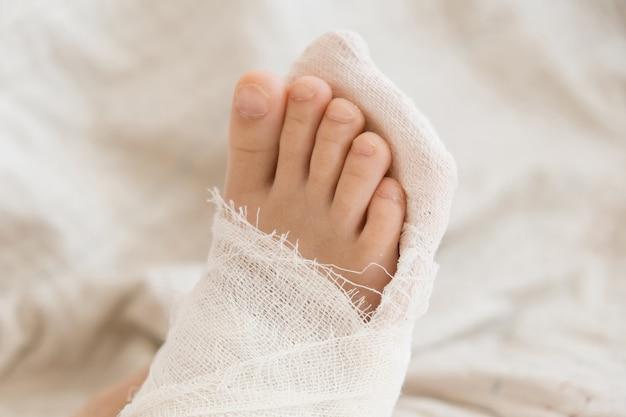 Gebrochenes bein. nahaufnahme des abgusses an den füßen. übungen zur reparatur und stärkung der muskulatur. schäden an den knochen. medizinische versorgung eines chirurgen in der notaufnahme