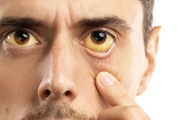 Gelbliche augen sind anzeichen für probleme mit leber, virusinfektion oder anderen krankheiten