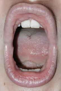 Geöffneter mund