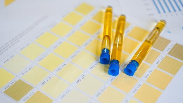Geschlossene urinröhrchen werden auf farbtafeln gelegt. das konzept der analysen, diagnose von krankheiten. kontrolle der trinkwassermenge