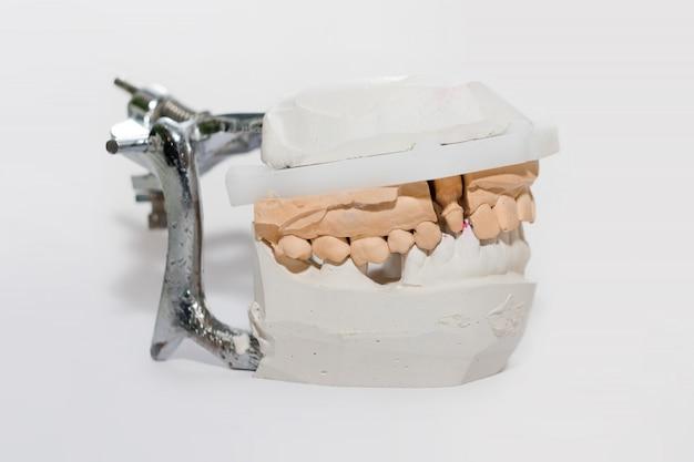 Gips guss der kiefer. zahngussmodell menschliche kiefer im prothetischen labor. zahnmedizin, kieferorthopädie. nahansicht. selektiver fokus