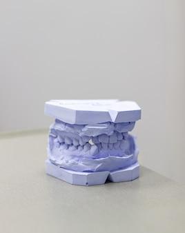 Gipsabdruck von zähnen aus gips beim kieferorthopäden.