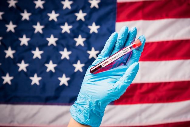 Hände des arztes mit handschuhen, die das coronavirus (covid-19) -virus des blutreagenzglases halten