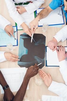 Hände von ärzten verschiedener rassen sind auf einem röntgenbild dargestellt.