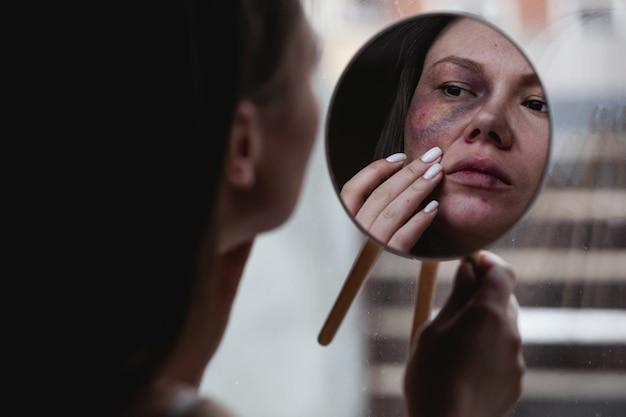 Häusliche gewalt, missbrauch frau mit blauen flecken im gesicht am fenster schaut in den spiegel