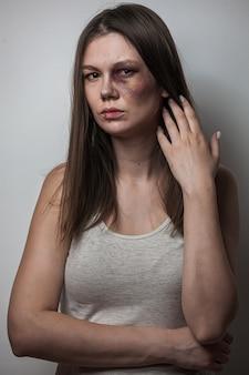 Häusliche gewalt, missbrauchsfrau mit prellung im gesicht