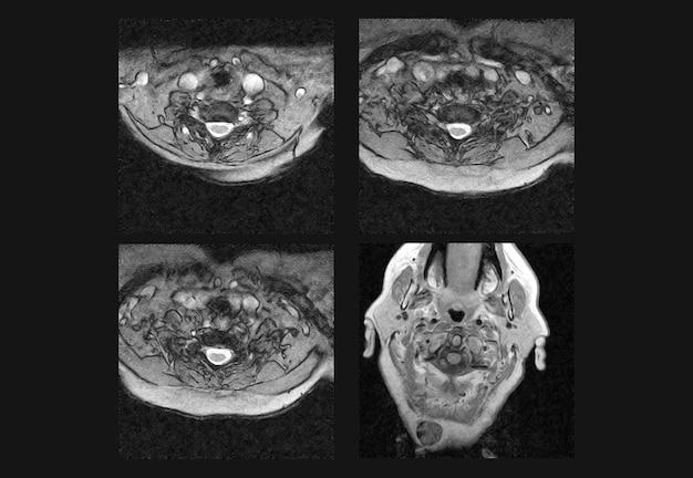 Halswirbelsäule mrt und ct-röntgenaufnahmen professionell
