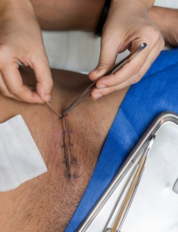 Hand der krankenschwester näht mit hernienpatienten weg
