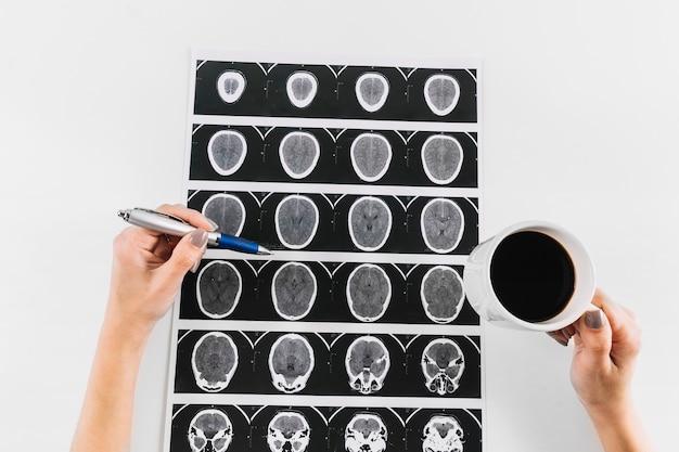 Hand des doktors mit tasse tee und stift über mri-scan des menschlichen gehirns