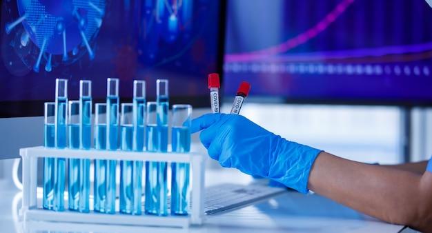 Hand, die blaue medizinische handschuhe trägt, die reagenzglas halten und computertastatur eingeben.