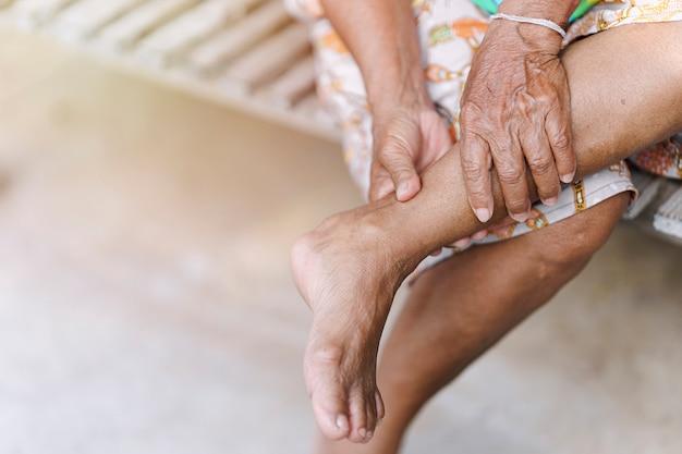 Hand einer älteren frau massiert einen knöchel mit einer verletzung aufgrund von arthritis