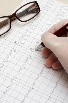 Hand im medizinischen handschuh, der einen kugelschreiber hält. elektrokardiogramm