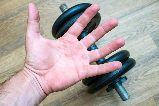 Hand mit mais, kallus, schwielen, verhärtung, kongelation auf der palme, die sportturnhallensportkonzept der körperlichen tätigkeit des dummkopfs hält