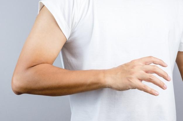 Hand mit sonnenbrand hinterließ das zeichen auf der armbanduhr
