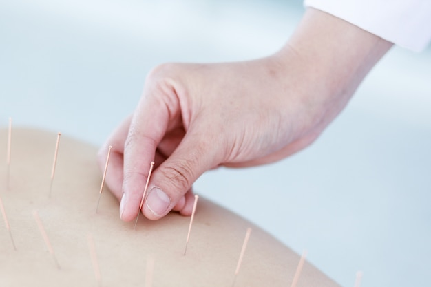 Hand von doktor akupunkturtherapie durchführend. asiatische frau, die akupunkturbehandlung mit einer linie von feinen nadeln durchmacht, setzte in ihre körperhaut im klinikkrankenhaus ein