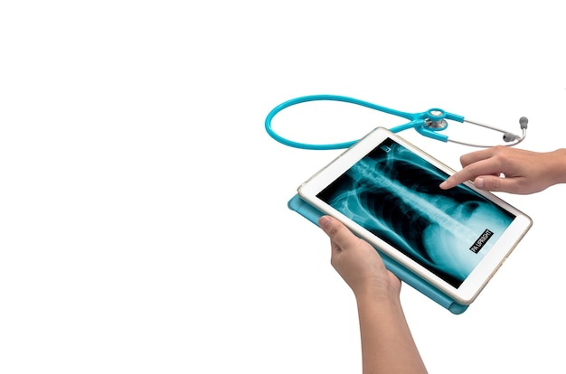 Handberührendes tablet mit röntgenbild