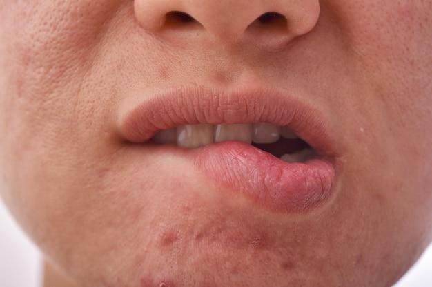 Hautkrankheitsproblem, trockene und rissige lippen durch lippenbeißen, aknenarben und pickel mit großen poren, alterndes gesicht und falten, frau macht sich sorgen über gesichtsprobleme.