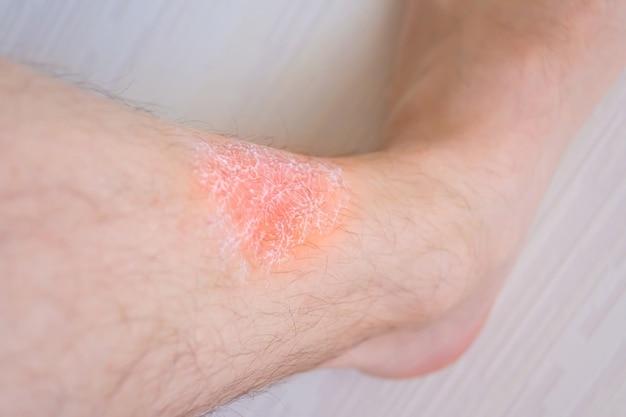 Hautreizung der füße, creme auf die haut durch reizung aufgetragen.