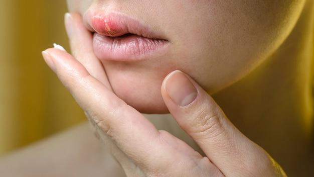 Herpes auf der oberlippe einer jungen frau