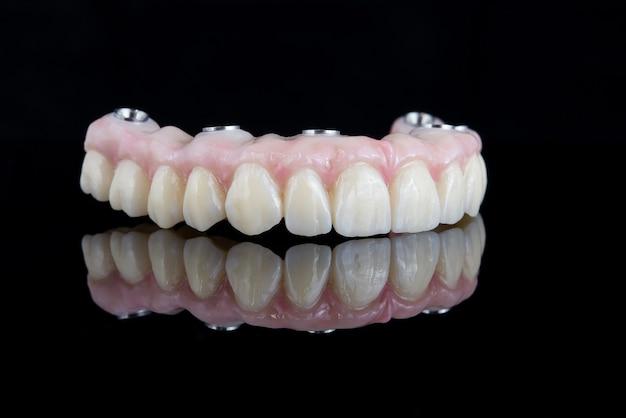 Hochwertige zahnprothese aus titanstrahl und keramik zur fixierung am oberkiefer
