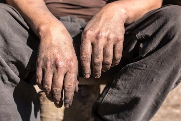 Holzkohlebrenner arbeiter mit schmutzigen händen. arbeiterhände.