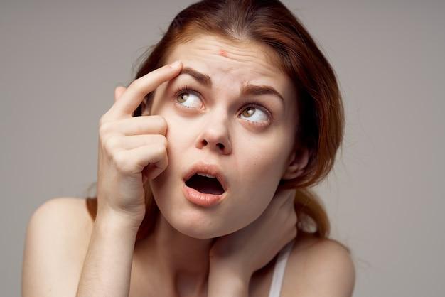Hübsche frau gesichtshautprobleme dermatologie heller hintergrund