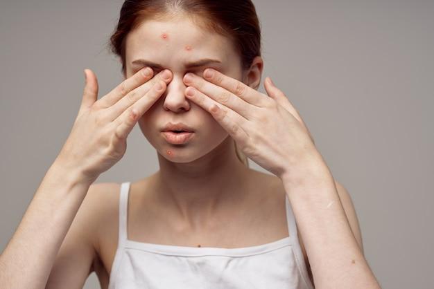 Hübsche frau gesichtshautprobleme dermatologie nahaufnahme. foto in hoher qualität