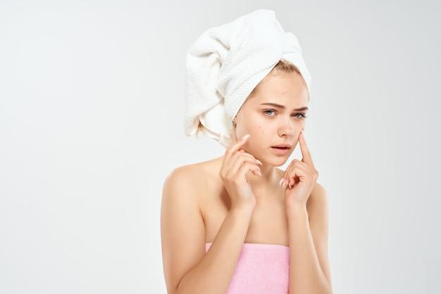 Hübsche frau mit einem handtuch auf dem kopf hautprobleme dermatologie. foto in hoher qualität