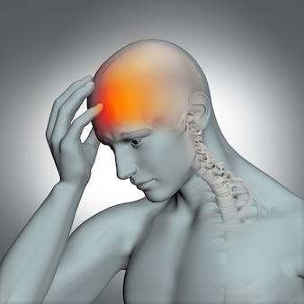 Illustration der menschlichen figur mit kopfschmerzen