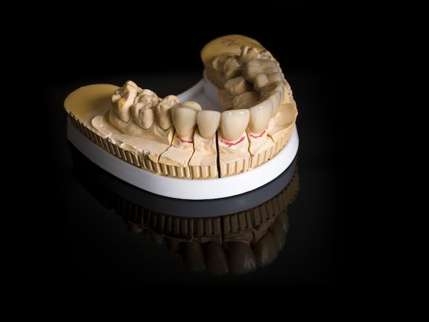 Implantat mit monolithischen zirkonoxid-restaurationen, das mit der keramikfüllung im vestibularbereich abgestützt wird