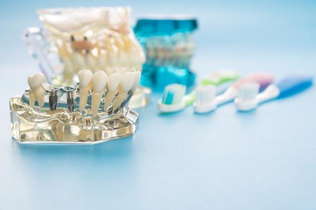 Implantat und kieferorthopädisches modell für den schüler, um das unterrichtsmodell zu lernen, das zähne zeigt.