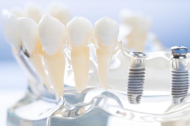 Implantat und kieferorthopädisches modell für schüler zum lernen lehrmodell zeigt zähne.