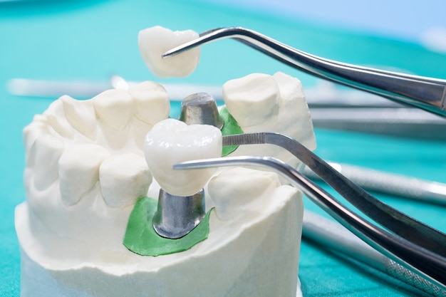 Implantat- und prosrthodontisches modell.