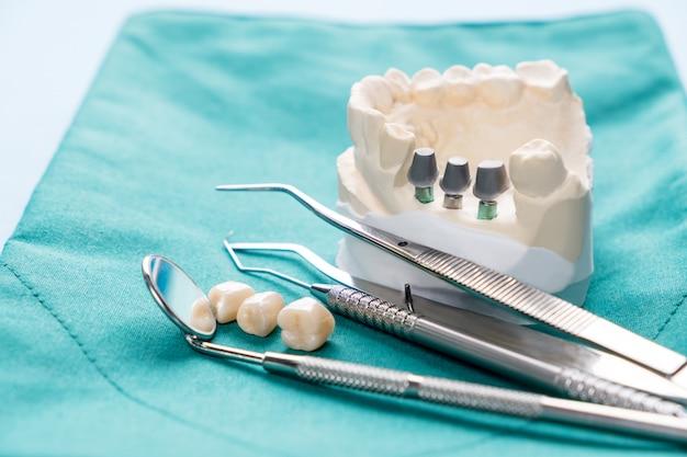 Implantat- und prothetisches modell.