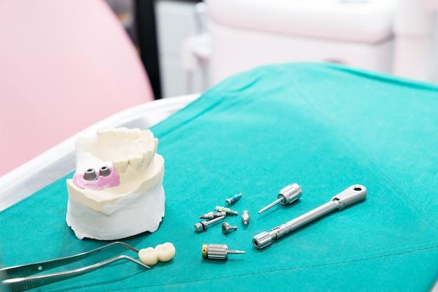Implantatmodell zahnstütze brücke implan und krone fixieren.