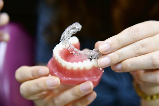 Inivisalign zahnspangen oder aligner. zahnarztberatung, wie unsichtbare kieferorthopädie schöne zähne in der zahnklinik macht.