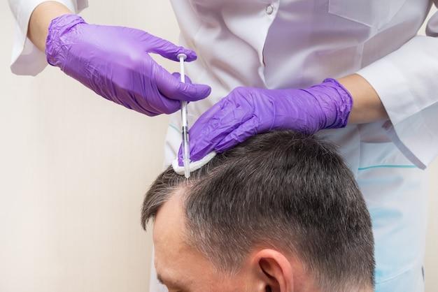 Injektion, behandlung von haarausfall