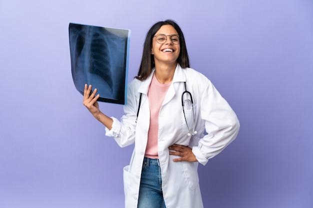 Junge ärztin, die eine radiographie hält, die mit den armen an der hüfte aufwirft und lächelt