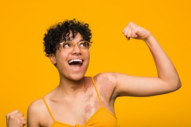 Junge afroamerikanerfrau mit dem hautgeburtszeichen, das faust nach einem sieg, siegerkonzept anhebt.