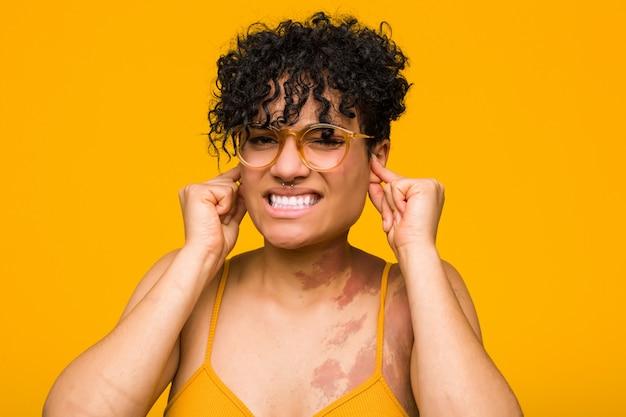 Junge afroamerikanerfrau mit dem hautgeburtszeichen, das ohren mit den händen bedeckt.