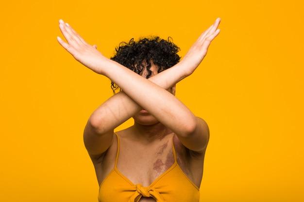 Junge afroamerikanerfrau mit dem hautgeburtszeichen, das zwei arme gekreuzt, ablehnungskonzept hält.