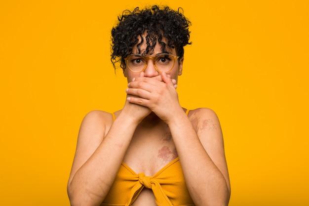 Junge afroamerikanerfrau mit hautgeburtsmarke entsetzte bedeckungsmund mit den händen.