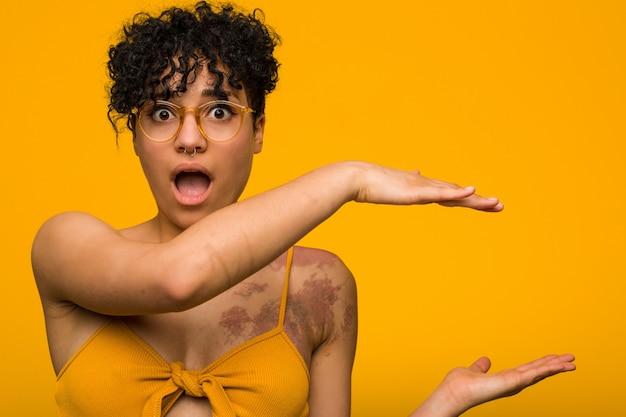 Junge afroamerikanerfrau mit hautgeburtszeichen schockiert und erstaunt, einen kopierraum zwischen den händen haltend.